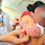 Triệu chứng của bệnh sốt phát ban ở trẻ em& cách xử lý