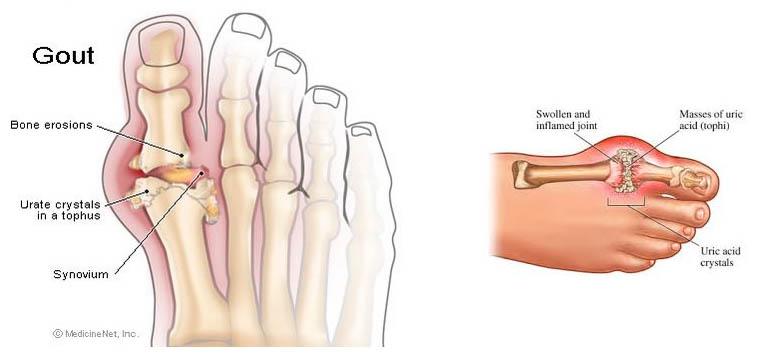 trieu-chung-benh-gout
