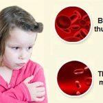Trẻ thiếu máu nên ăn gì?