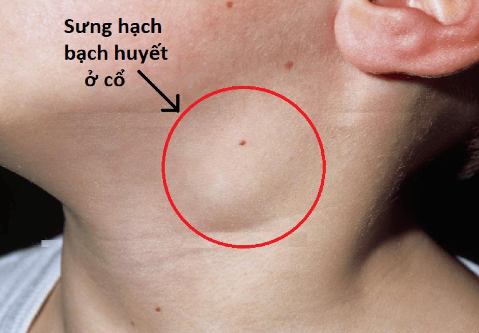 Biểu hiện nhiễm hiv
