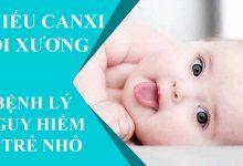 Dấu hiệu nhận biết trẻ sơ sinh thiếu canxi mẹ cần phải biết