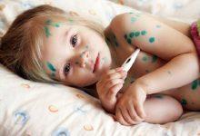 Chi tiết cách điều trị thủy đậu cho bé tại nhà