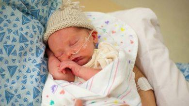 Những rắc rối thường gặp ở trẻ sinh non mẹ cần biết